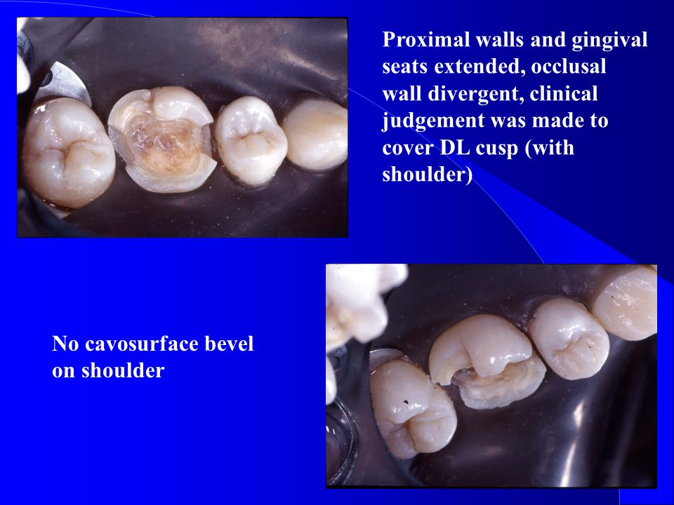 Proximal walls and gingival seats extended, occlusal wall divergent, clinical judgement was made to cover DL cusp (with shoulder)
