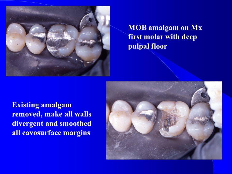 MOB amalgam on Mx first molar with deep pulpal floor