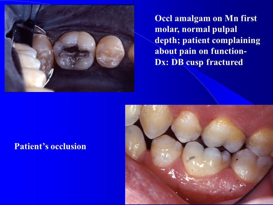 Occl amalgam on Mn first molar, normal pulpal depth; patient complaining about pain on function- Dx: DB cusp fractured