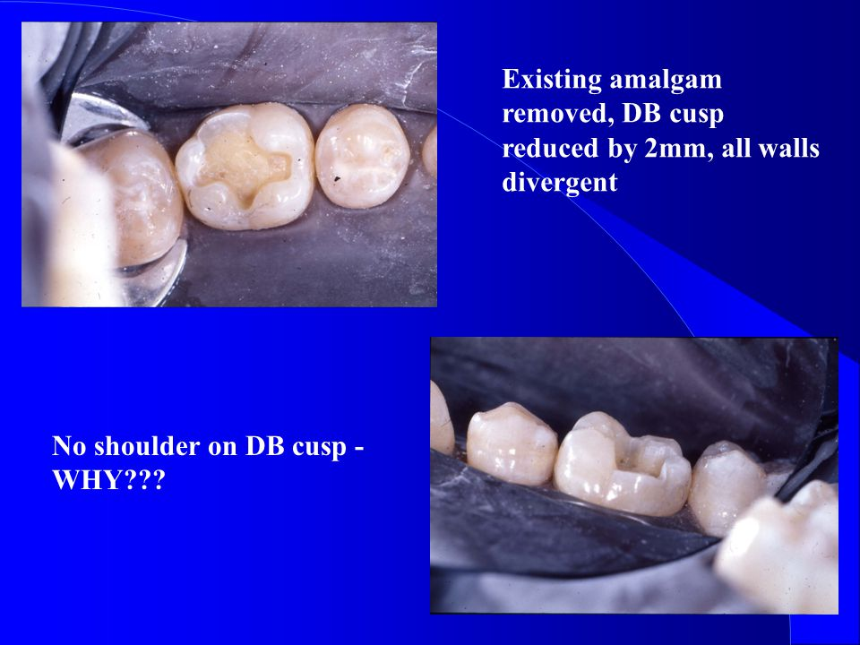 Existing amalgam removed, DB cusp reduced by 2mm, all walls divergent