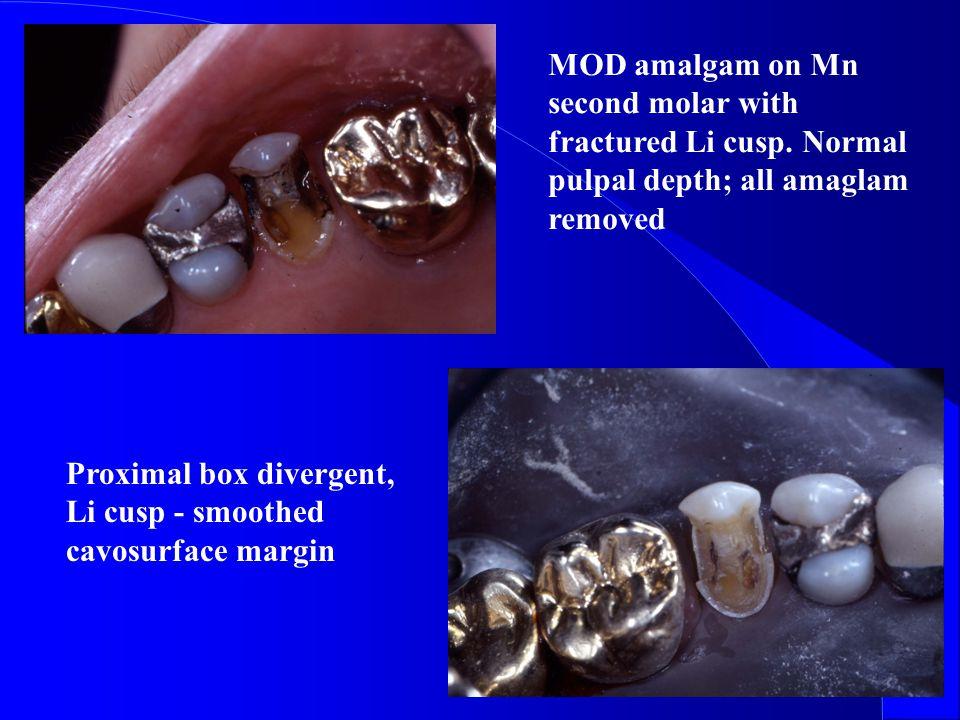 MOD amalgam on Mn second molar with fractured Li cusp