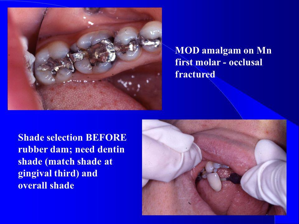 MOD amalgam on Mn first molar - occlusal fractured