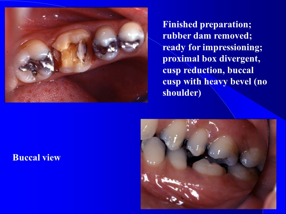 Finished preparation; rubber dam removed; ready for impressioning; proximal box divergent, cusp reduction, buccal cusp with heavy bevel (no shoulder)