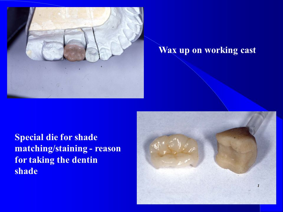 Wax up on working cast Special die for shade matching/staining - reason for taking the dentin shade