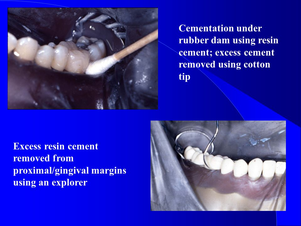 Cementation under rubber dam using resin cement; excess cement removed using cotton tip