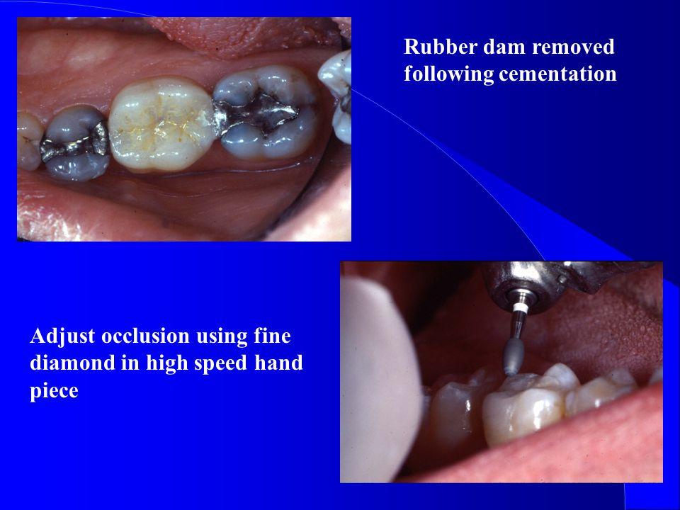 Rubber dam removed following cementation