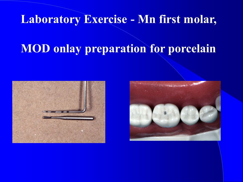 Laboratory Exercise - Mn first molar,