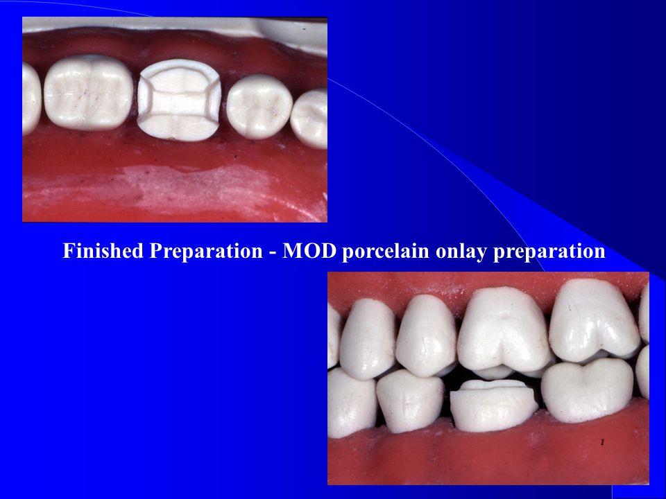Finished Preparation - MOD porcelain onlay preparation