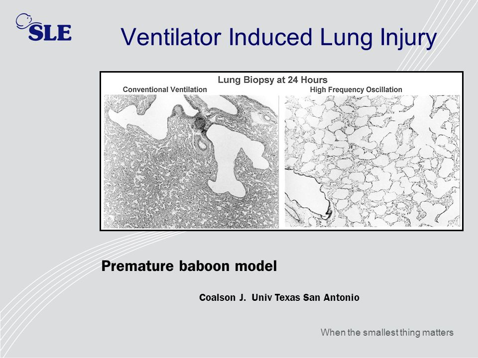 Ventilator Induced Lung Injury