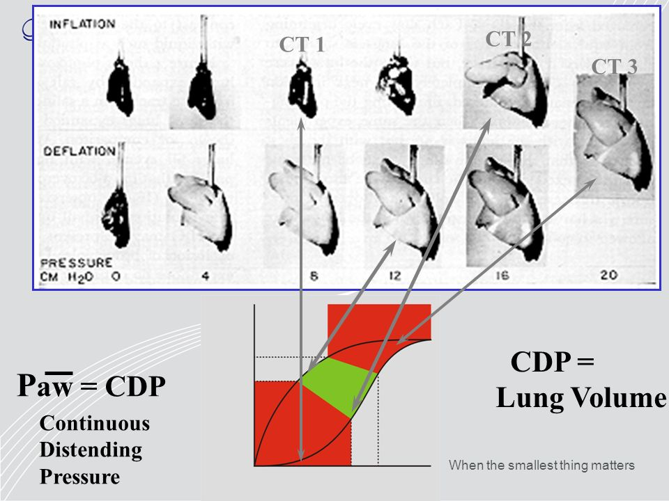 Paw = CDP CDP = Lung Volume CT 2 CT 1 CT 3 Continuous Distending