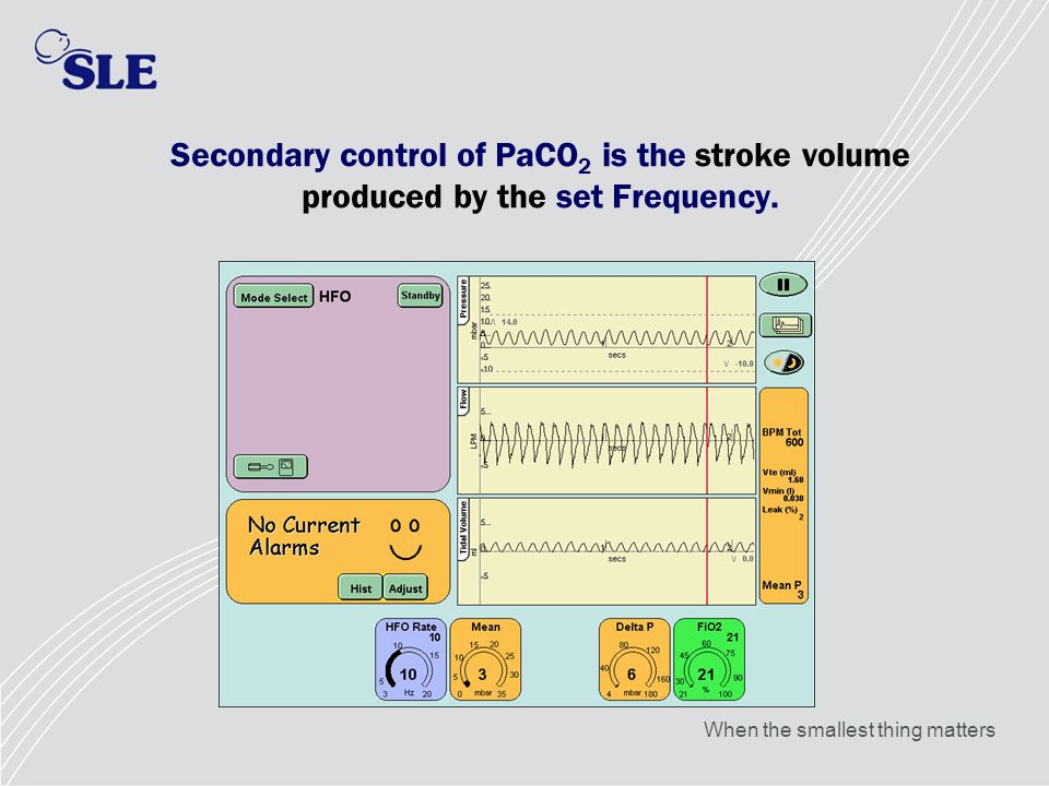 Secondary control of PaCO2 is the stroke volume produced by the set Frequency.