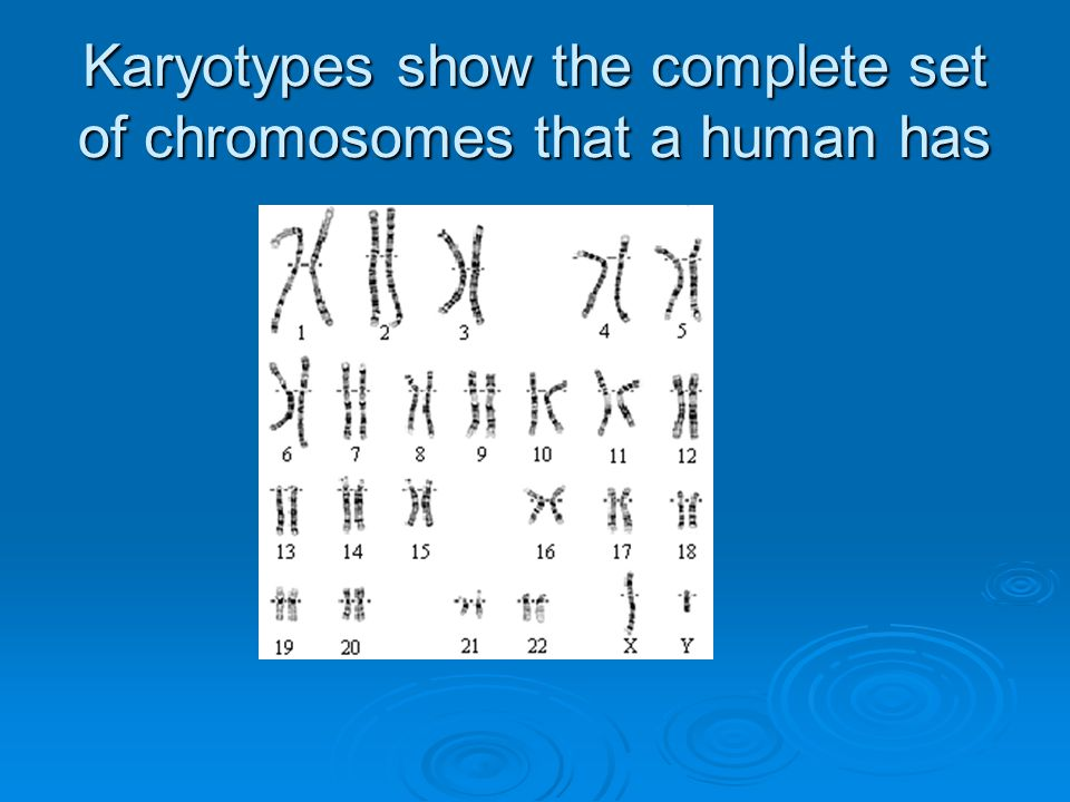 Karyotypes show the complete set of chromosomes that a human has