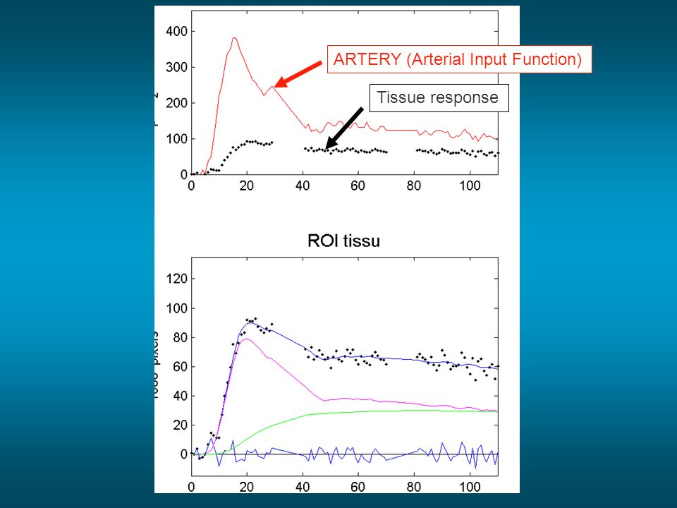 ARTERY (Arterial Input Function)