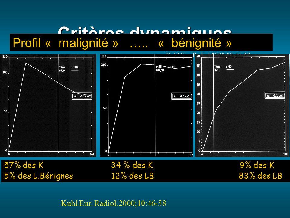 Critères dynamiques Profil « malignité » ….. « bénignité »