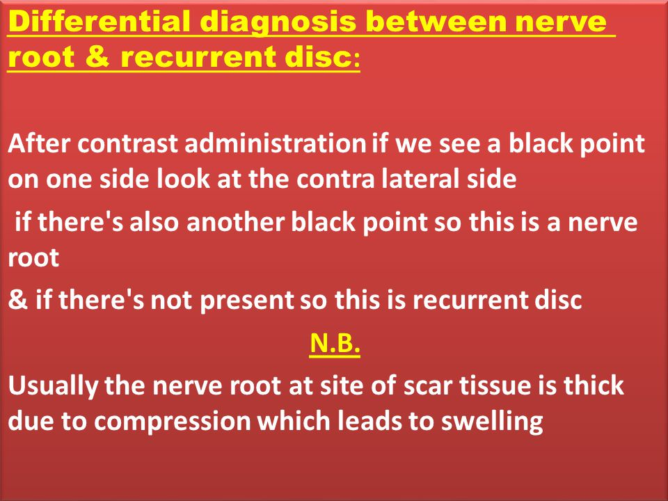 Differential diagnosis between nerve root & recurrent disc:
