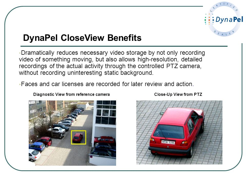 DynaPel CloseView Benefits