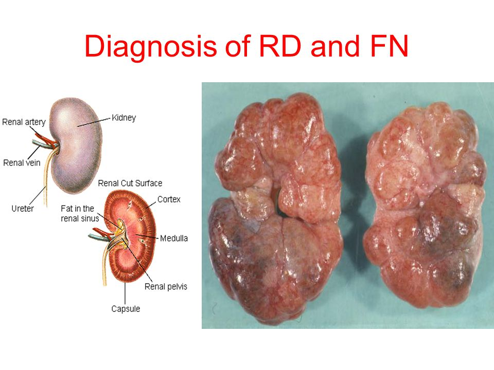 Diagnosis of RD and FN