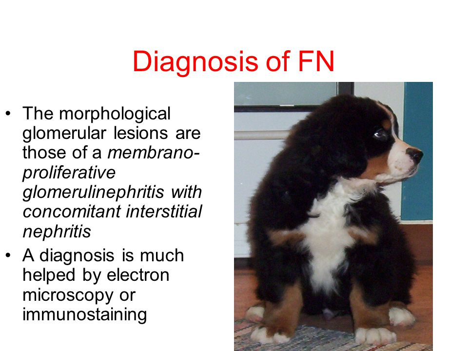 Diagnosis of FN The morphological glomerular lesions are those of a membrano-proliferative glomerulinephritis with concomitant interstitial nephritis.