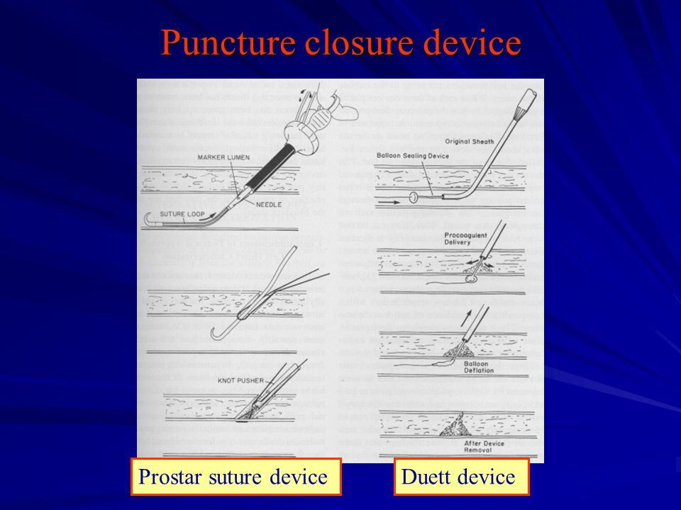 Puncture closure device