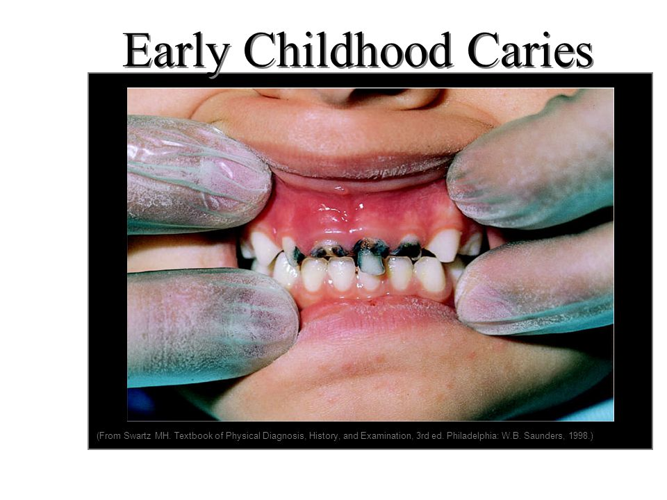 Tooth decay - young children