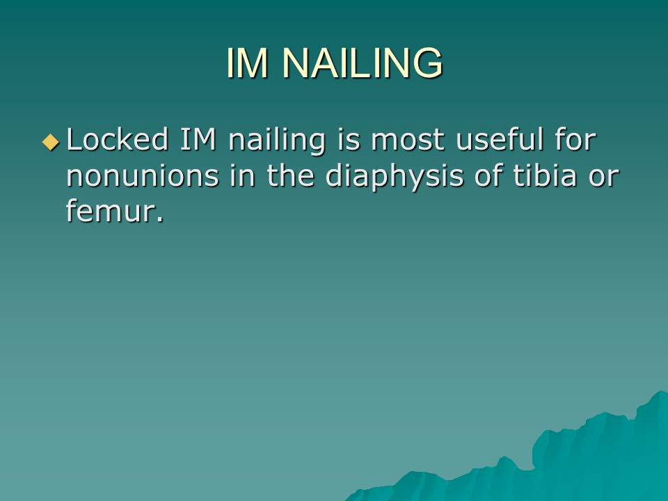 IM NAILING Locked IM nailing is most useful for nonunions in the diaphysis of tibia or femur.
