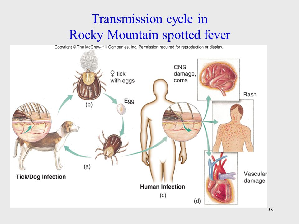 Transmission cycle in Rocky Mountain spotted fever