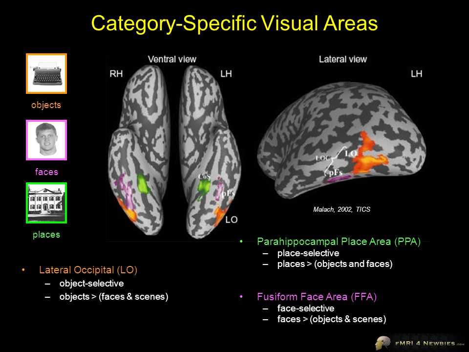 A Brief Intro to Cortical Neuroanatomy - ppt video online ...  A Brief Intro t...