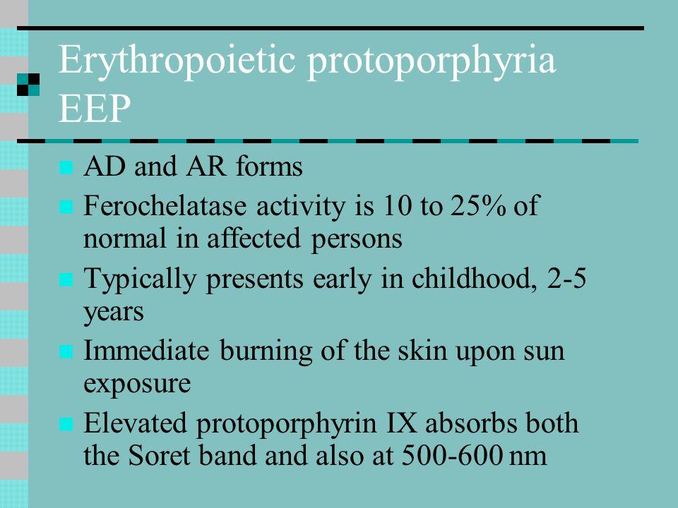 Erythropoietic protoporphyria EEP