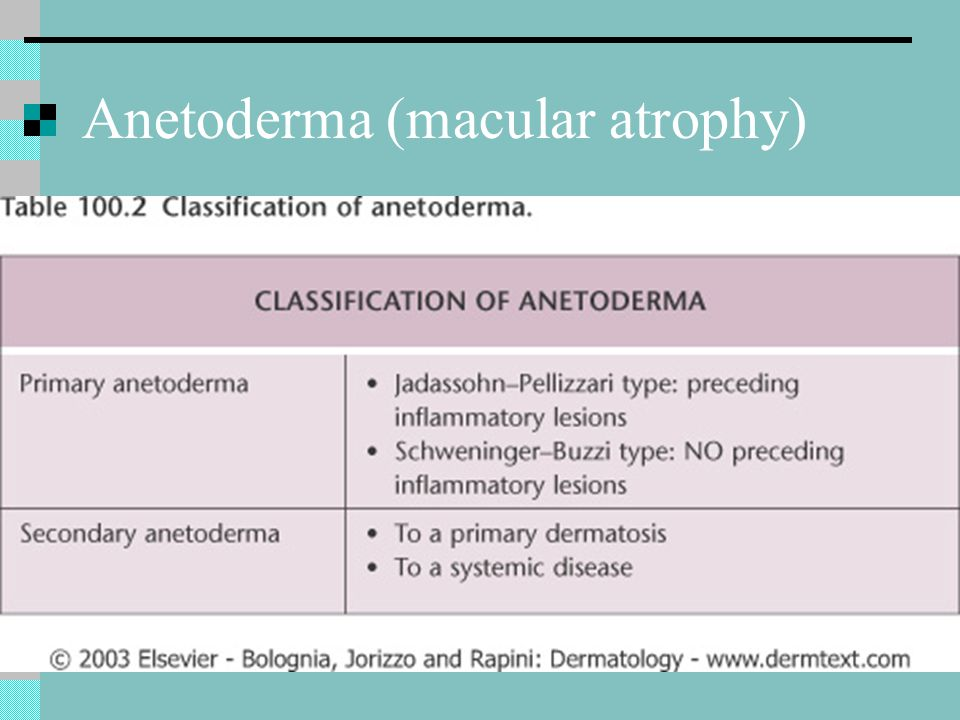 Anetoderma (macular atrophy)