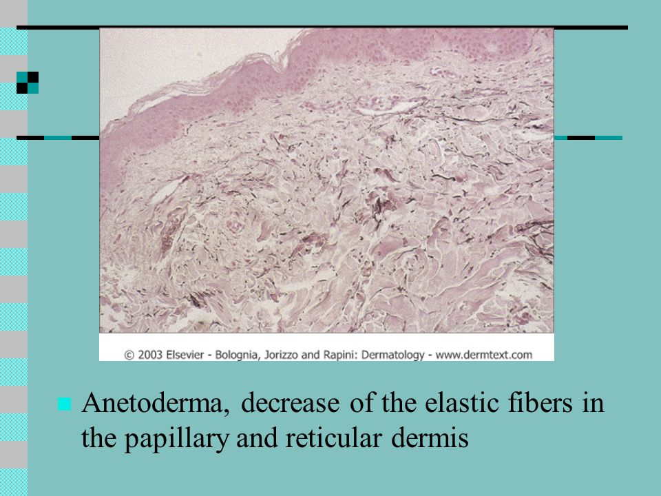 Anetoderma, decrease of the elastic fibers in the papillary and reticular dermis