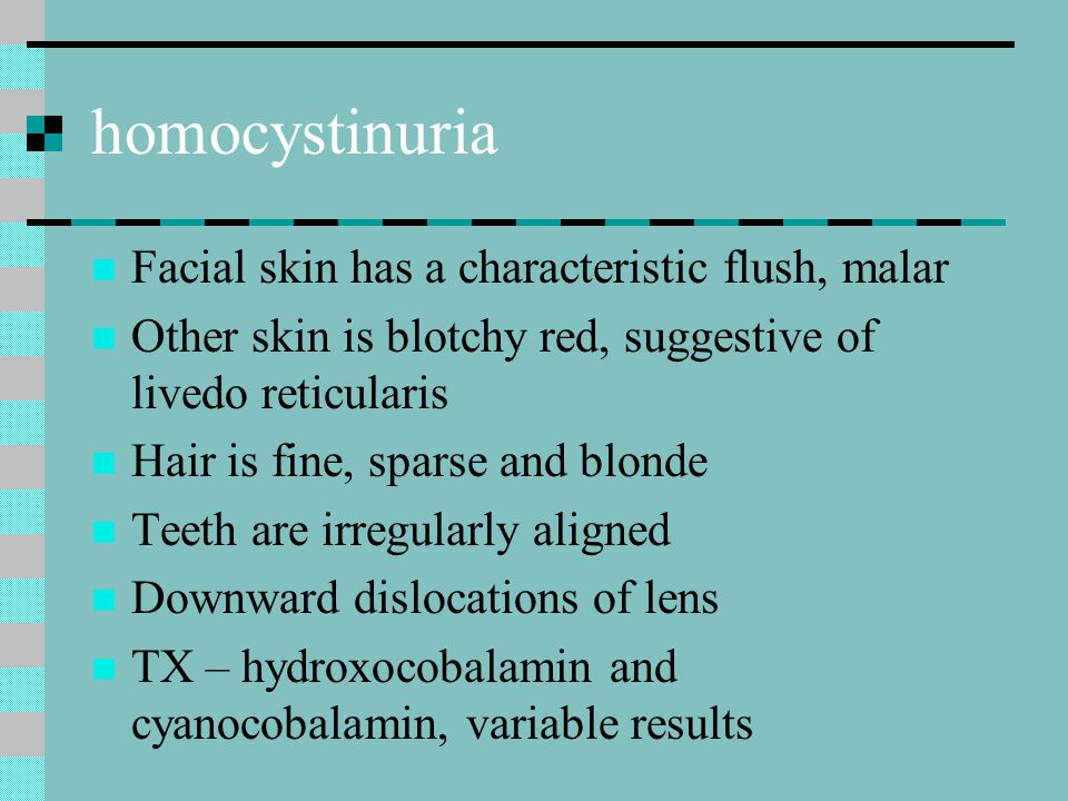 homocystinuria Facial skin has a characteristic flush, malar