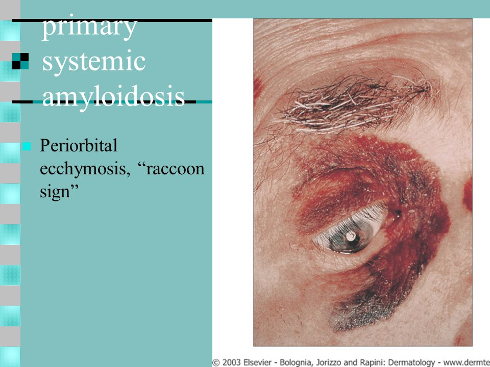 primary systemic amyloidosis