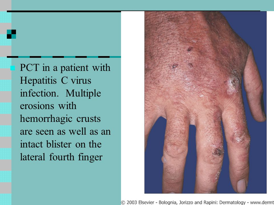 PCT in a patient with Hepatitis C virus infection