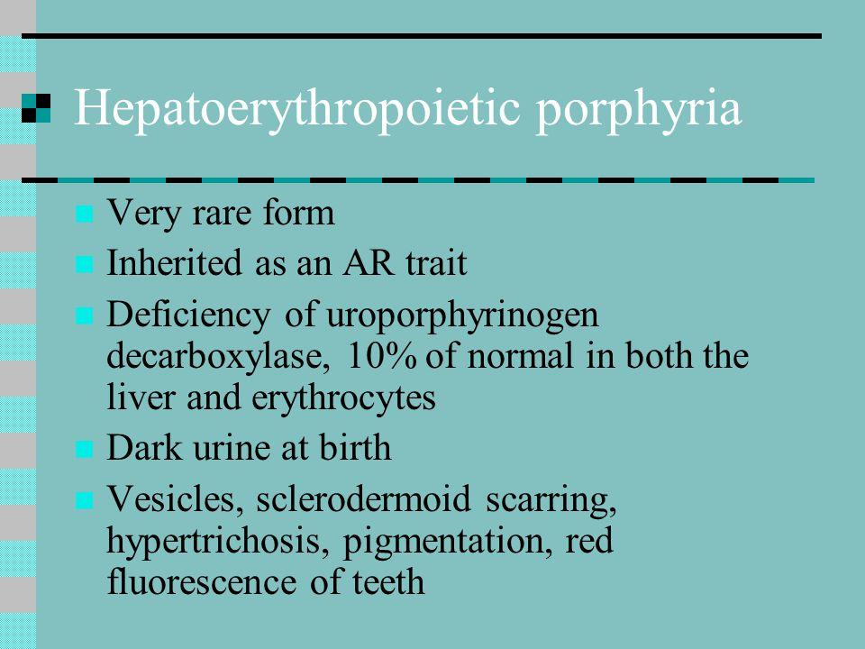 Hepatoerythropoietic porphyria