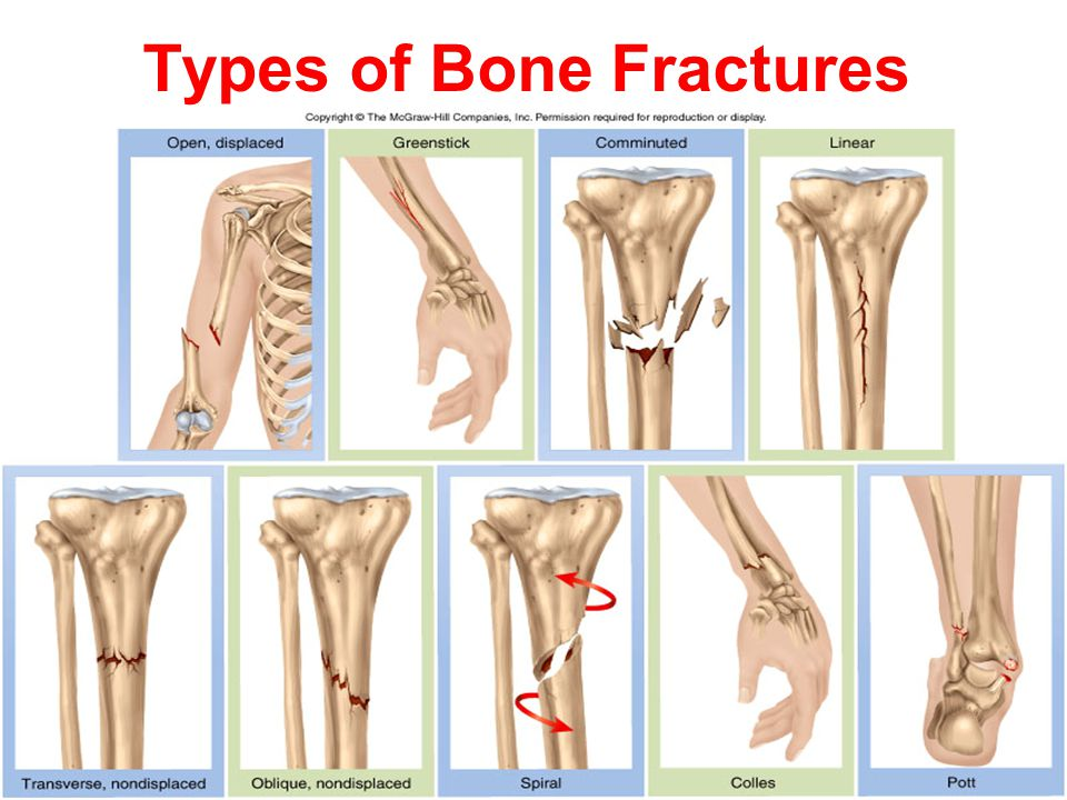 bone fracture types A fracture is a partial or complete break in the bone there are different causes and types of fractures symptoms include swelling and bruising.