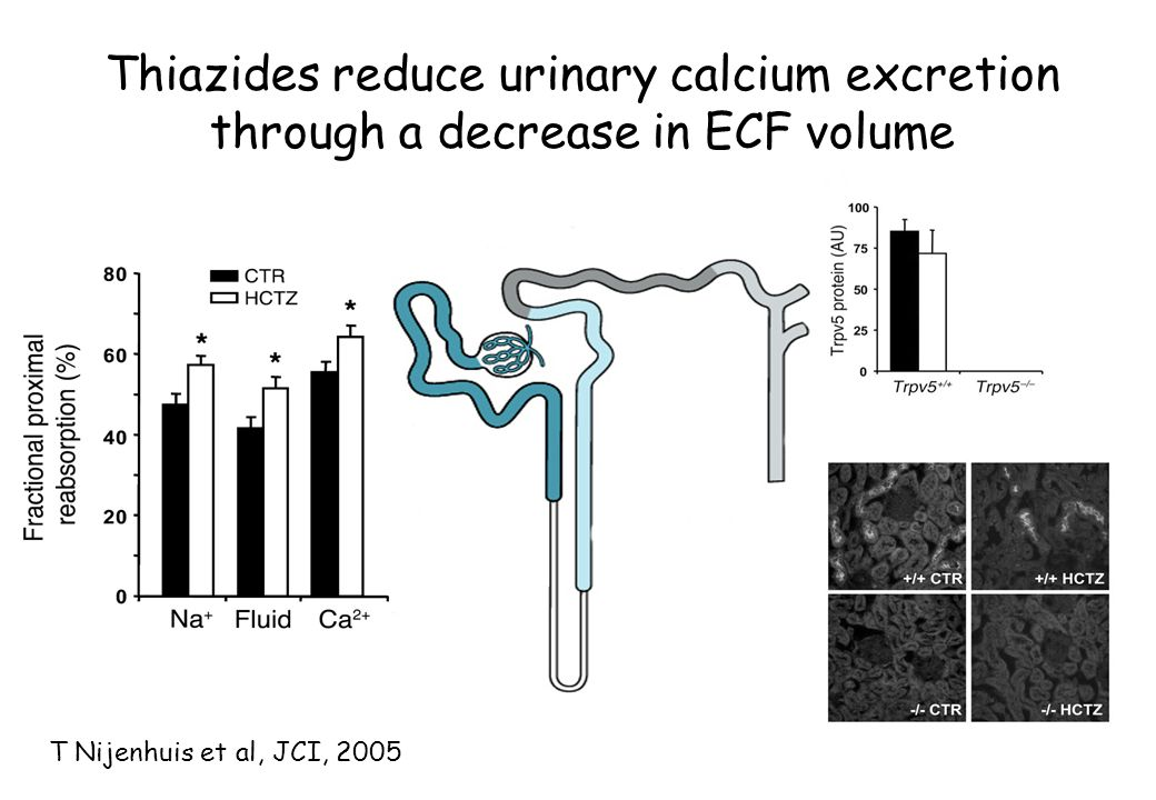 Thiazides reduce urinary calcium excretion through a decrease in ECF volume
