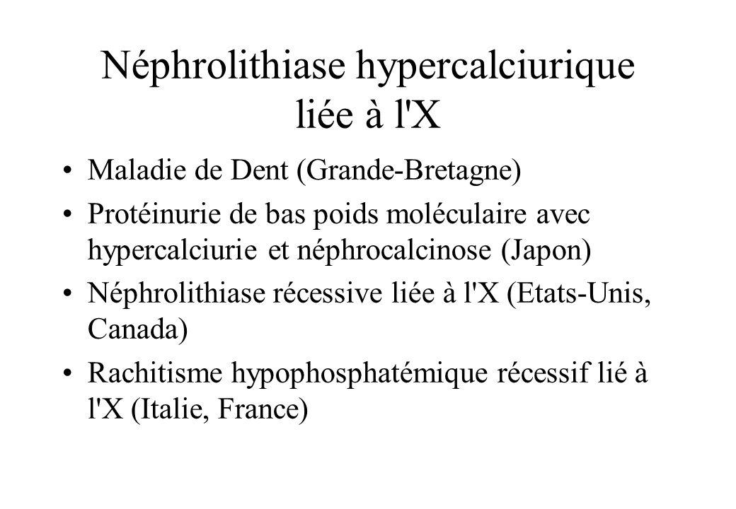 Néphrolithiase hypercalciurique liée à l X