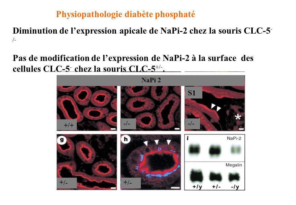 Physiopathologie diabète phosphaté