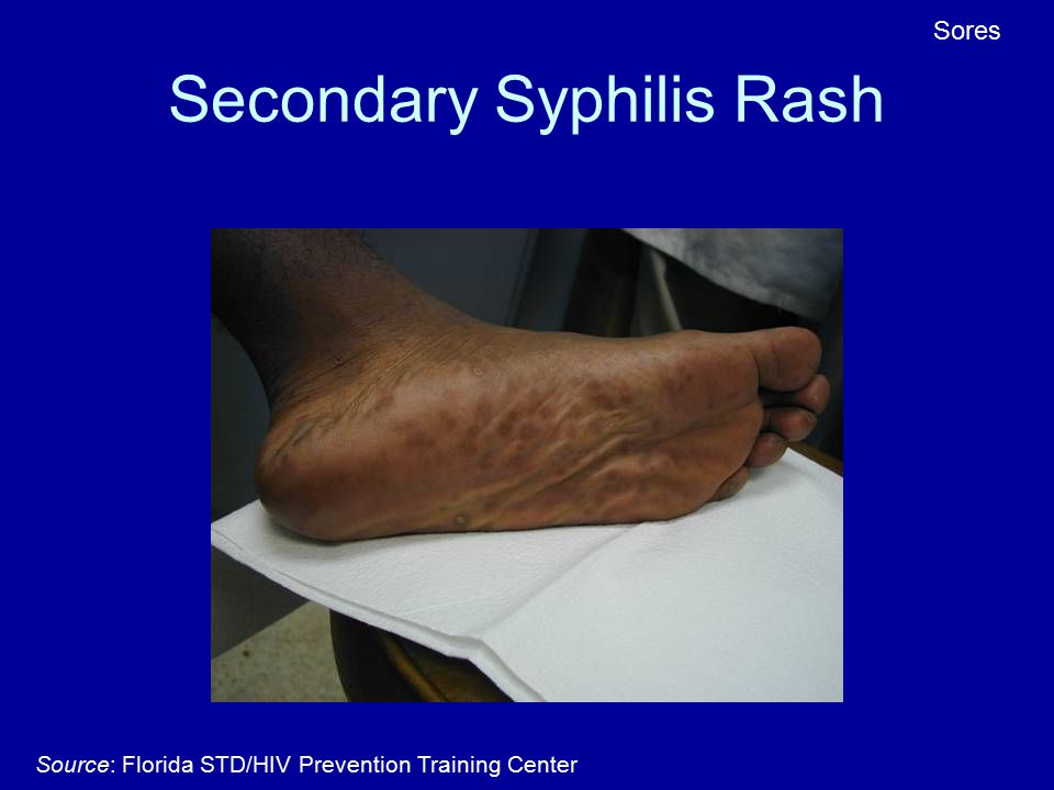 Primary Syphilis Rash Old Clinic Audi...