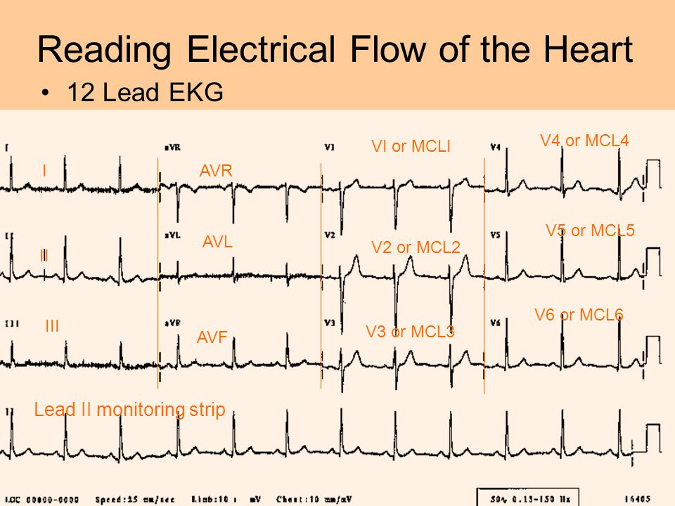Reading Electrical Flow of the Heart