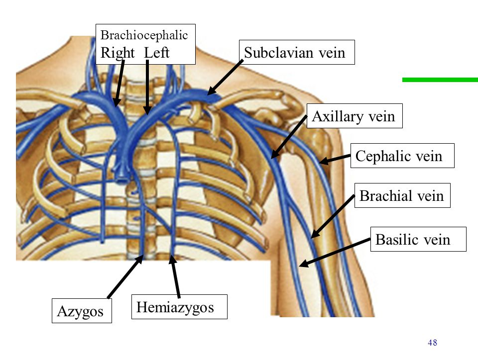 right median cubital vein - klejonka, Cephalic Vein