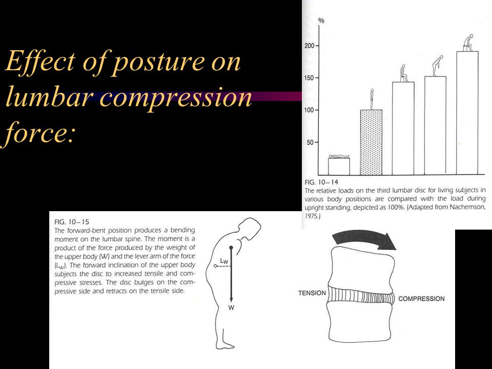 Effect of posture on lumbar compression force: