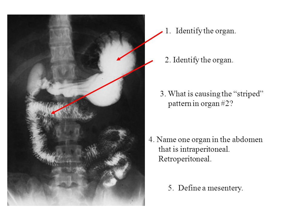 Identify the organ. 2. Identify the organ. 3. What is causing the striped pattern in organ #2 4. Name one organ in the abdomen.