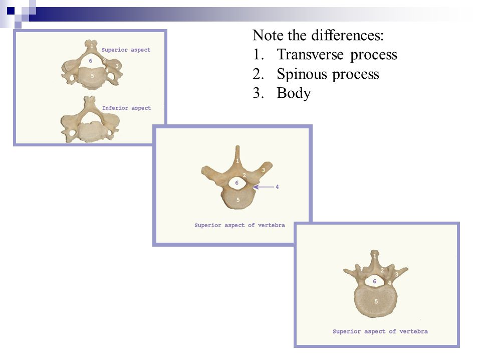 Note the differences: Transverse process Spinous process Body