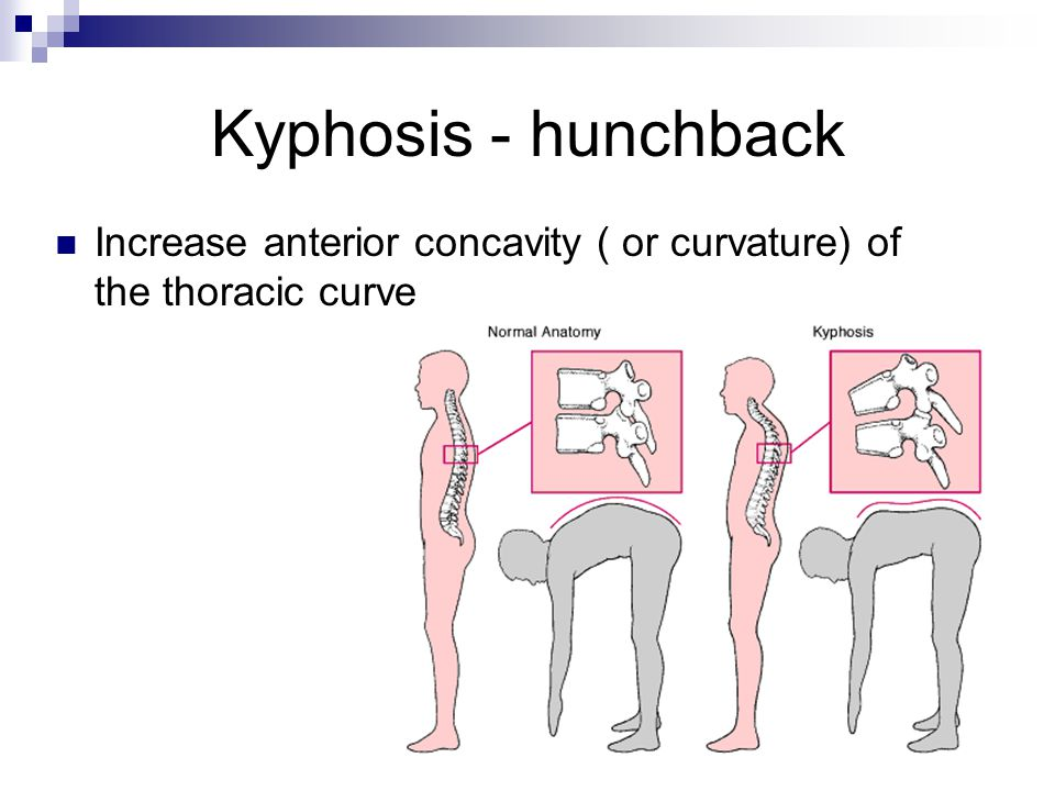 Kyphosis - hunchback Increase anterior concavity ( or curvature) of the thoracic curve