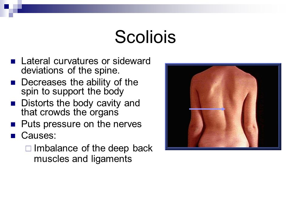 Scoliois Lateral curvatures or sideward deviations of the spine.