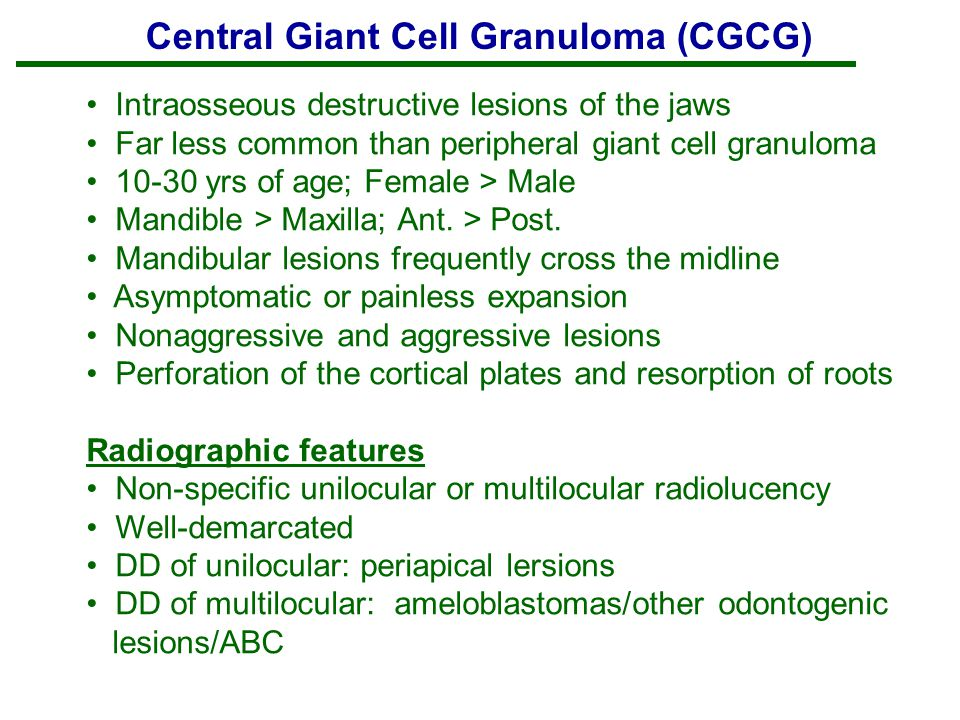 central giant cell granuloma cgcg case study Peripheral giant cell granuloma and peripheral ossifying fibroma are clinicopathologically distinct gingival lesions both are included in clinical differential diagnoses of common benign and reactive gingival epulides in humans it is often impossible to make a clinical distinction between the two.