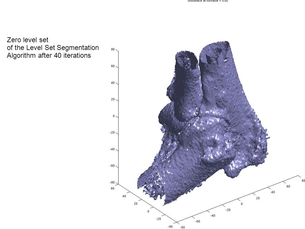 level set method image segmentation code