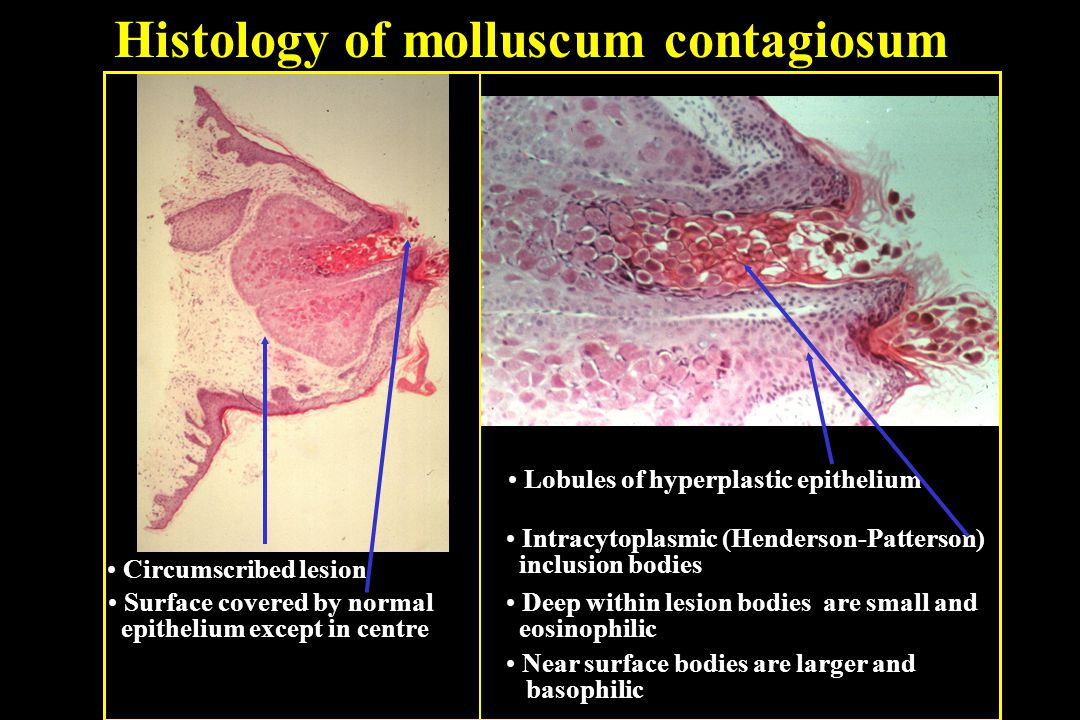 molluscum contagiosum ppt video online download