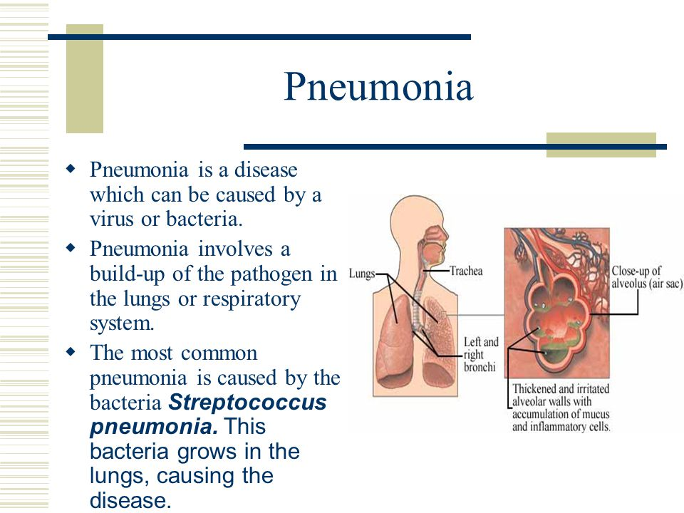 Pneumonia Pneumonia is a disease which can be caused by a virus or bacteria.